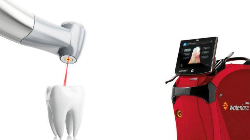 tratarea cariilor cu laserul
