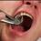 Tipuri de extractii dentare